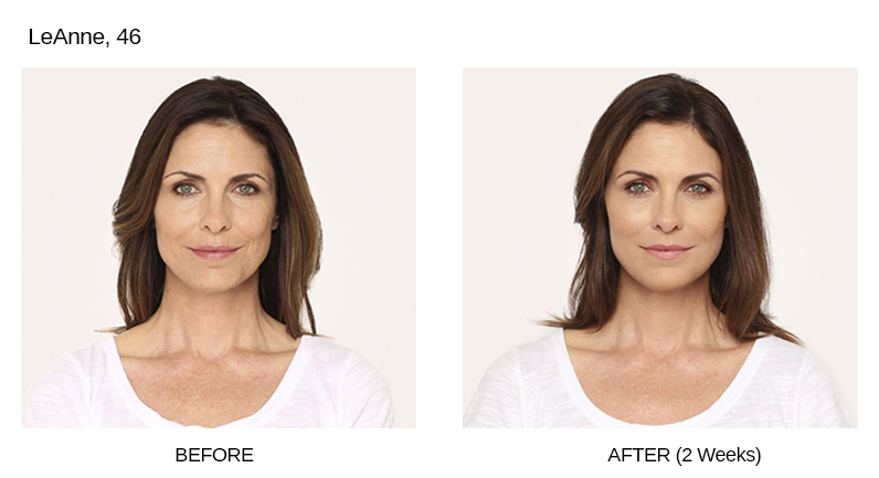Radiesse Before & After