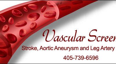 Vascular Screening for $100