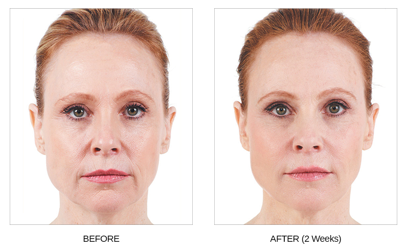 Learn About Cosmetic Fillers