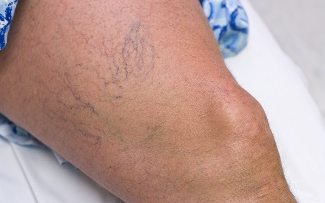 What You Should Know: Sclerotherapy for Spider Vein Treatment
