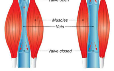 Walking and the Importance of Ankle Mobility for Priming the Calf Muscle Pump for Venous Health
