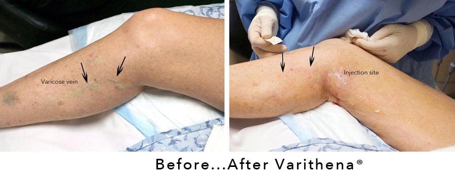 Reasons to Consider Varithena for Varicose Vein Treatment