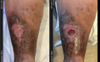 Those Varicose Veins Could Become a Problem: How Venous Insufficiency Can Lead to Leg Ulcerations