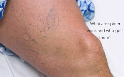 What Are Spider Veins And Who Gets Them?