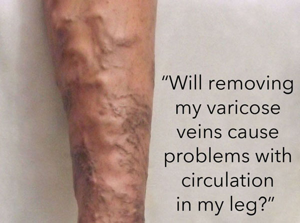"""Will removing my varicose veins cause problems with circulation in my legs?"""