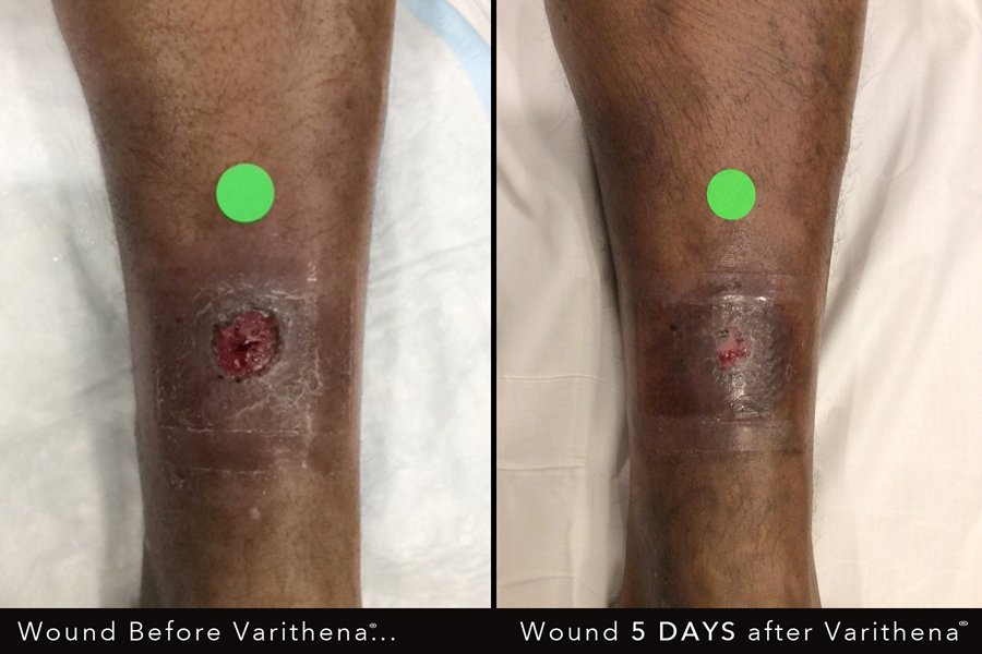 Totality Participates in National Study on the Effect of Varithena on Wounds Caused by Venous Disease