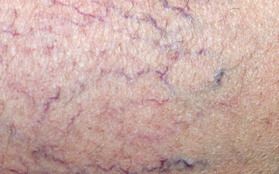 Spider Veins: Cosmetic or Problematic?