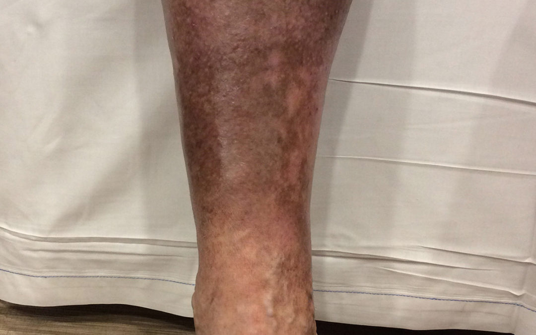 Lower Leg Discoloration: What Does It Mean?