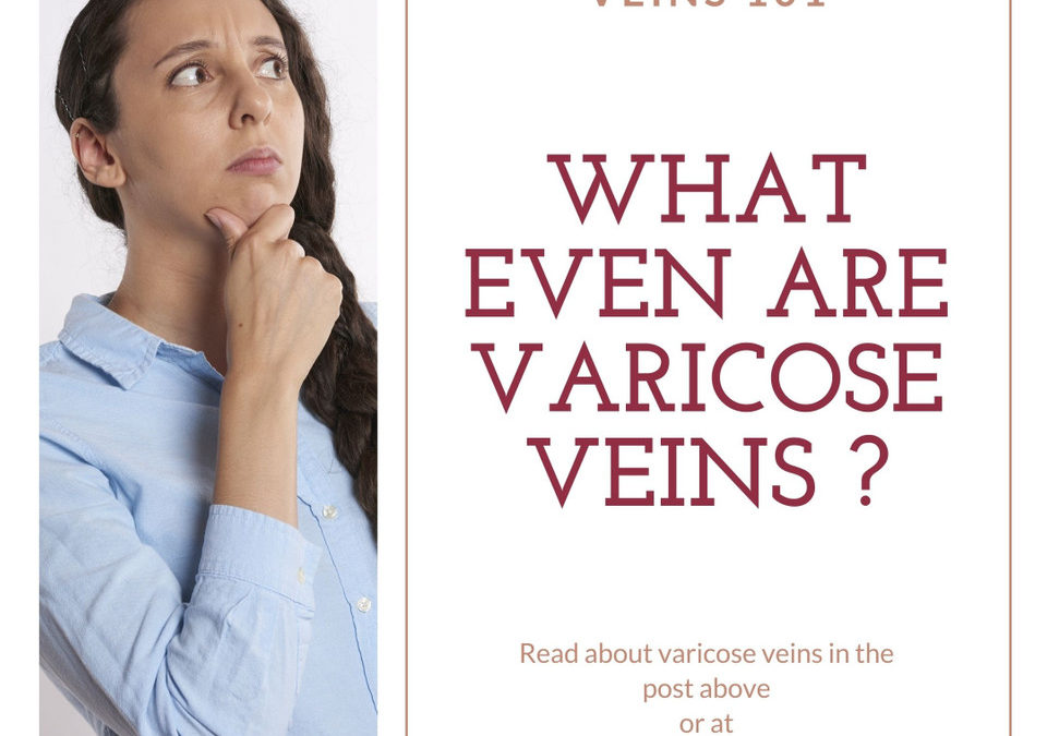 Veins 101: What even are Varicose Veins?