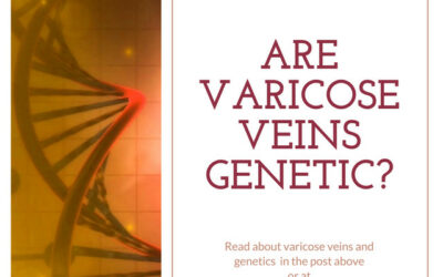 Veins 101: Are Varicose Veins Genetic?